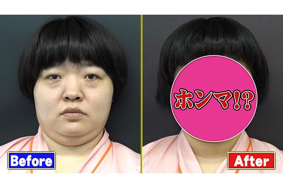 「おかずクラブ」のオカリナが最新美容整形法「ハイフ」に挑戦【写真:(C)フジテレビ】