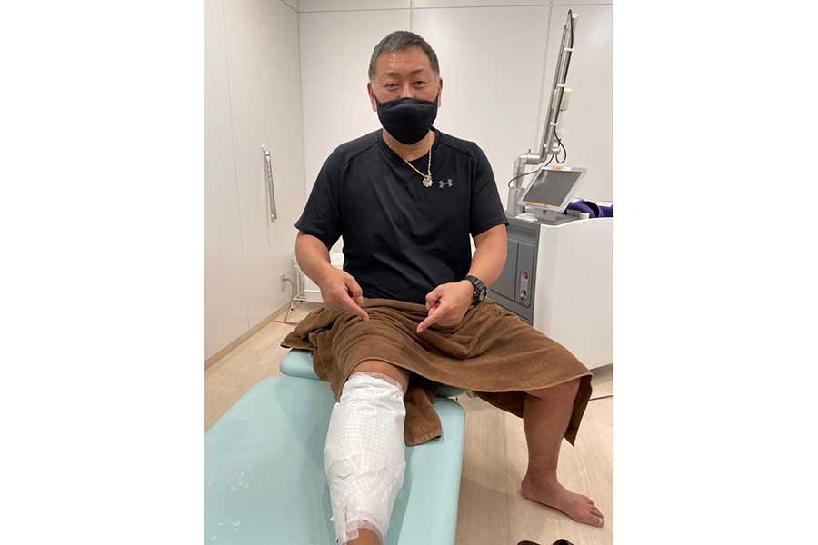清原氏がタトゥー除去の開始を報告